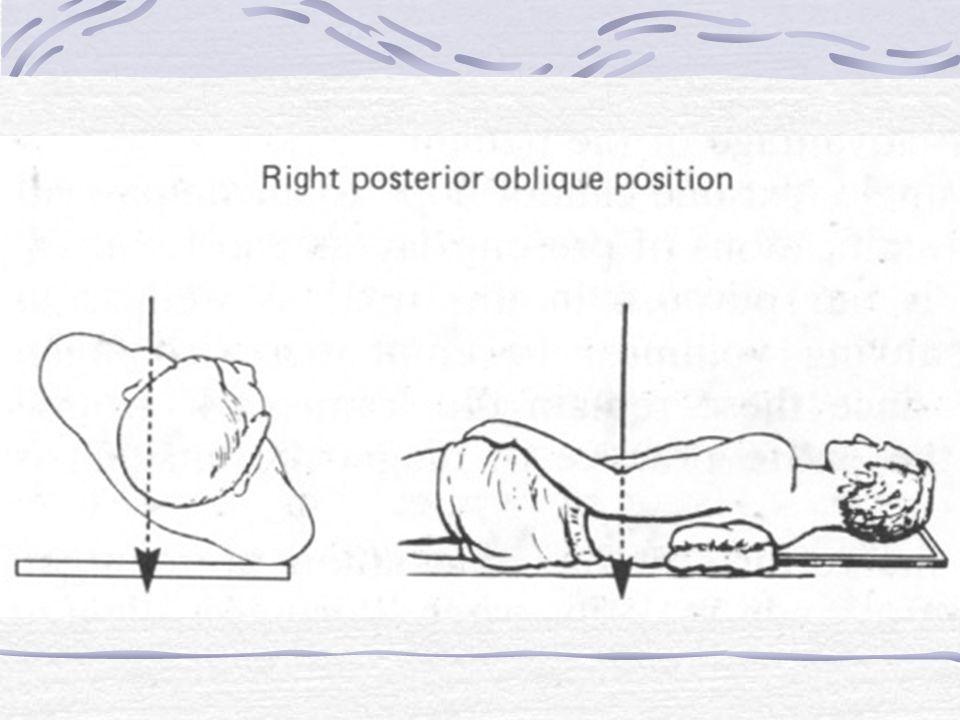 Anatomi Thorax, PA