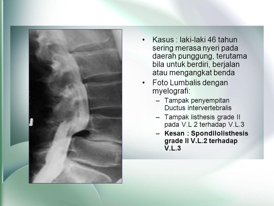 •Kasus : laki-laki 46 tahun sering merasa nyeri pada daerah punggung, terutama bila untuk berdiri, berjalan atau mengangkat benda •Foto Lumbalis denga