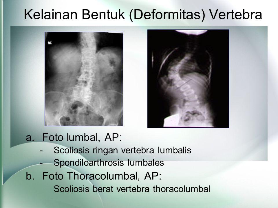 Kelainan Bentuk (Deformitas) Vertebra a.Foto lumbal, AP: -Scoliosis ringan vertebra lumbalis -Spondiloarthrosis lumbales b.Foto Thoracolumbal, AP: Scoliosis berat vertebra thoracolumbal