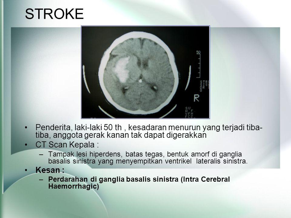 STROKE •Penderita, laki-laki 50 th, kesadaran menurun yang terjadi tiba- tiba, anggota gerak kanan tak dapat digerakkan •CT Scan Kepala : –Tampak lesi hiperdens, batas tegas, bentuk amorf di ganglia basalis sinistra yang menyempitkan ventrikel lateralis sinistra.