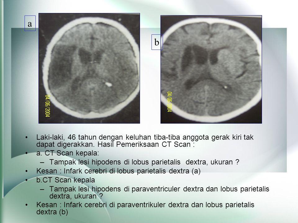 •Laki-laki, 46 tahun dengan keluhan tiba-tiba anggota gerak kiri tak dapat digerakkan. Hasil Pemeriksaan CT Scan : •a. CT Scan kepala: –Tampak lesi hi