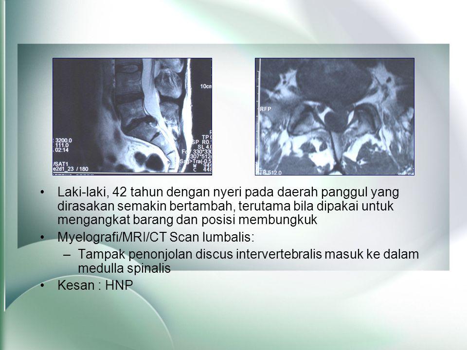 •Laki-laki, 42 tahun dengan nyeri pada daerah panggul yang dirasakan semakin bertambah, terutama bila dipakai untuk mengangkat barang dan posisi membungkuk •Myelografi/MRI/CT Scan lumbalis: –Tampak penonjolan discus intervertebralis masuk ke dalam medulla spinalis •Kesan : HNP