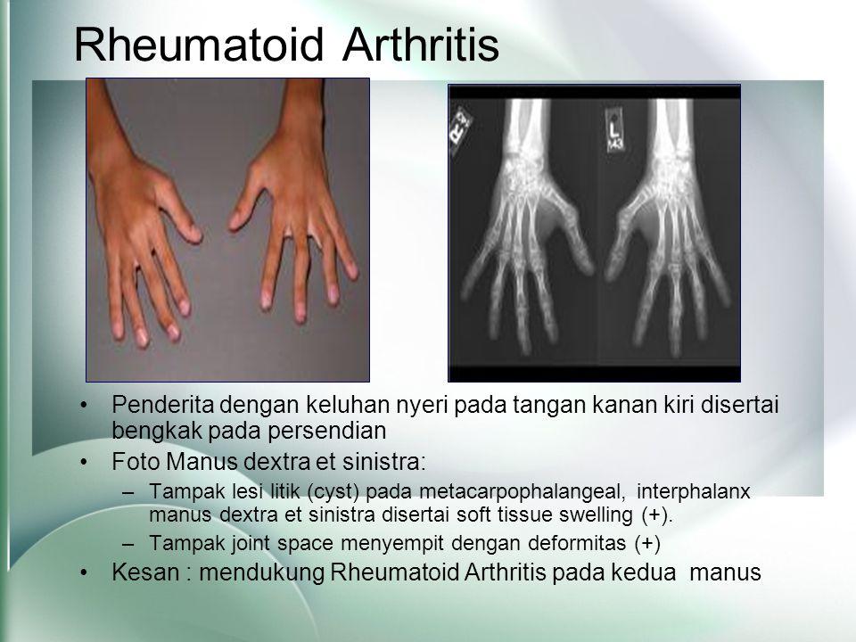 Rheumatoid Arthritis •Penderita dengan keluhan nyeri pada tangan kanan kiri disertai bengkak pada persendian •Foto Manus dextra et sinistra: –Tampak lesi litik (cyst) pada metacarpophalangeal, interphalanx manus dextra et sinistra disertai soft tissue swelling (+).