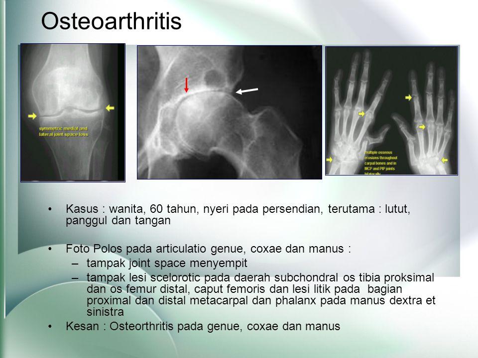 Osteoarthritis •Kasus : wanita, 60 tahun, nyeri pada persendian, terutama : lutut, panggul dan tangan •Foto Polos pada articulatio genue, coxae dan manus : –tampak joint space menyempit –tampak lesi scelorotic pada daerah subchondral os tibia proksimal dan os femur distal, caput femoris dan lesi litik pada bagian proximal dan distal metacarpal dan phalanx pada manus dextra et sinistra •Kesan : Osteorthritis pada genue, coxae dan manus