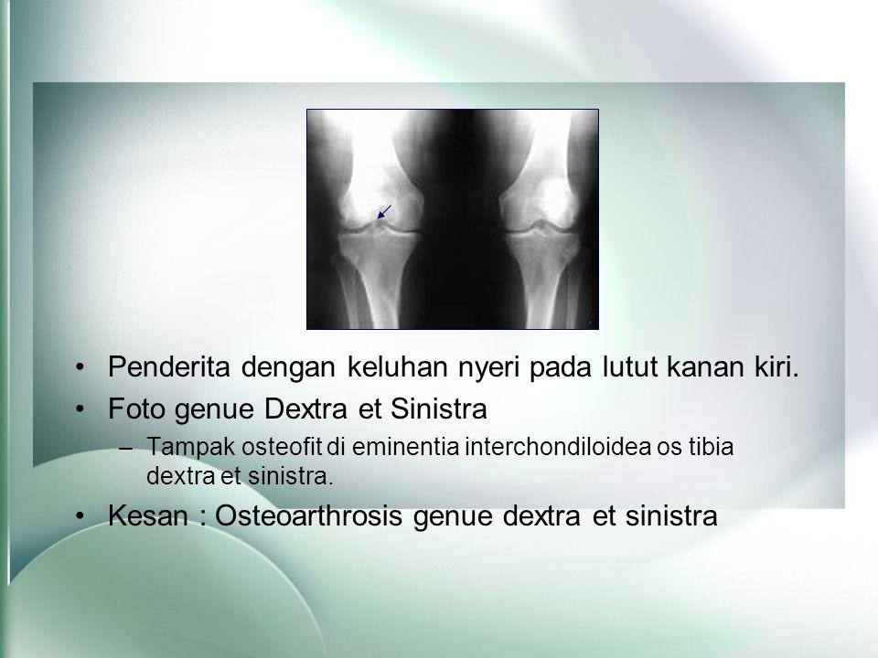 •Penderita dengan keluhan nyeri pada lutut kanan kiri. •Foto genue Dextra et Sinistra –Tampak osteofit di eminentia interchondiloidea os tibia dextra
