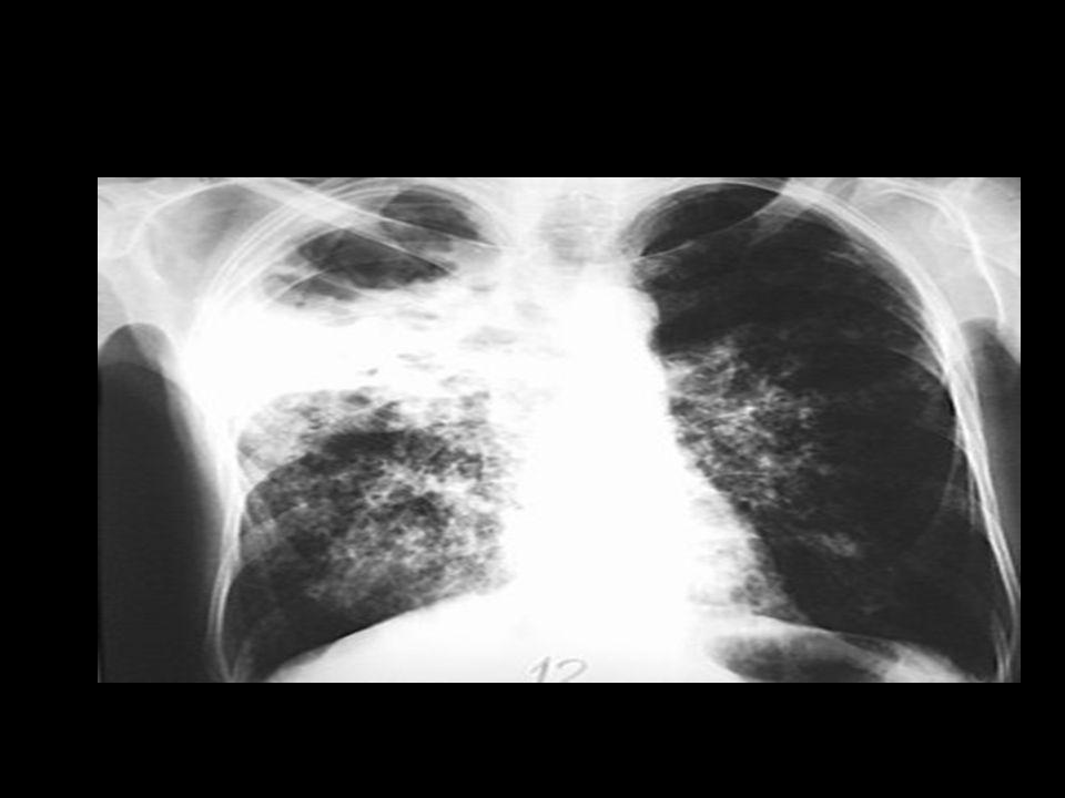 Penatalaksanaan  Obat anti TB (OAT) Jenis Obat : • Obat primer - isoniazid = INH - Streptomisin = SM - Rifampisin = RMP - Etambutol - Pita zinamid • Obat sekunder - Etionamid - P.A.S (Para Amine Saliycylic Acid) - Prorionamid - Tiasetazon - Sikloseren - Viomysin - Kanamisin - Kapremisy