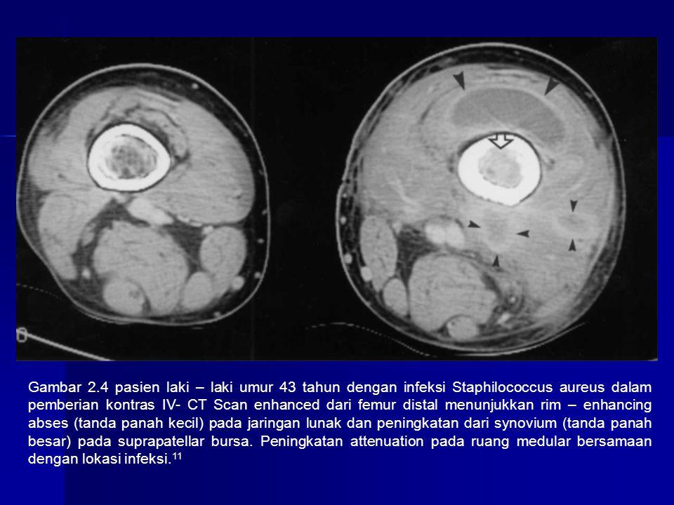 Gambar 2.4 pasien laki – laki umur 43 tahun dengan infeksi Staphilococcus aureus dalam pemberian kontras IV- CT Scan enhanced dari femur distal menunjukkan rim – enhancing abses (tanda panah kecil) pada jaringan lunak dan peningkatan dari synovium (tanda panah besar) pada suprapatellar bursa.
