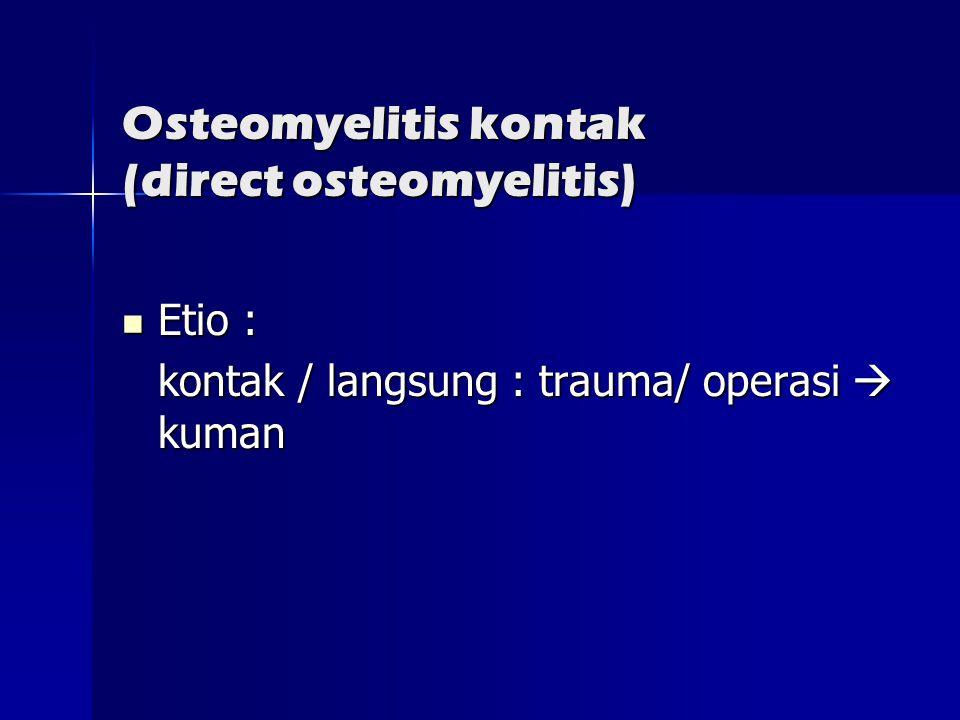 Osteomyelitis kontak (direct osteomyelitis)  Etio : kontak / langsung : trauma/ operasi  kuman