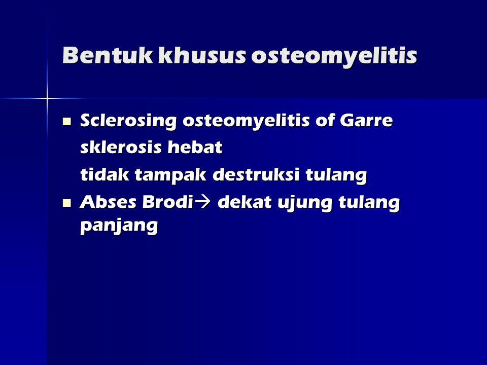 Bentuk khusus osteomyelitis  Sclerosing osteomyelitis of Garre sklerosis hebat tidak tampak destruksi tulang  Abses Brodi  dekat ujung tulang panjang