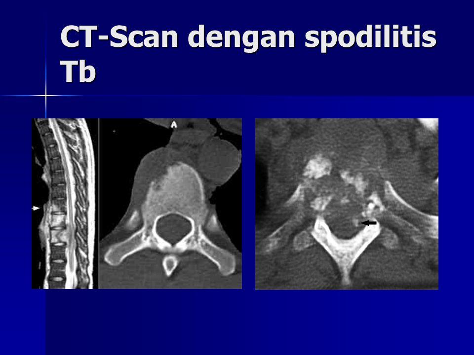CT-Scan dengan spodilitis Tb