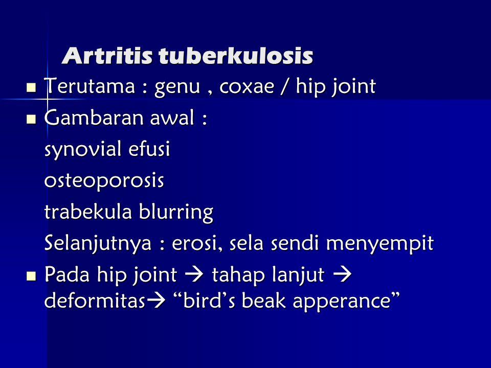 Artritis tuberkulosis  Terutama : genu, coxae / hip joint  Gambaran awal : synovial efusi osteoporosis trabekula blurring Selanjutnya : erosi, sela sendi menyempit  Pada hip joint  tahap lanjut  deformitas  bird's beak apperance