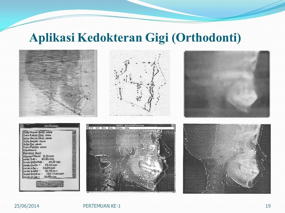 Aplikasi Kedokteran Gigi (Orthodonti) 25/06/2014PERTEMUAN KE-119