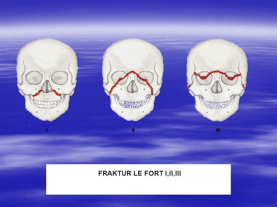 FRAKTUR LE FORT I,II,III FRAKTUR