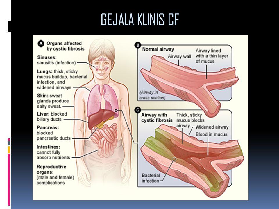 GEJALA KLINIS CF