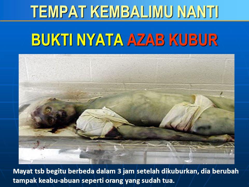 TEMPAT KEMBALIMU NANTI Foto berikut ini adalah seorang pemuda berusia 18 tahun yang meninggal di salah satu rumah sakit (hospital) di Oman. Mayat pemu