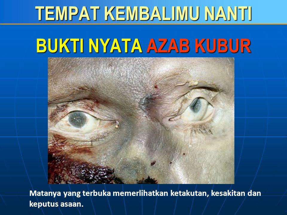TEMPAT KEMBALIMU NANTI BUKTI NYATA AZAB KUBUR Tampak jelas bekas siksaan dan pukulan yang amat keras.