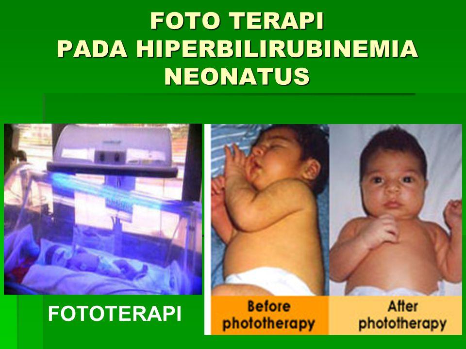 FOTO TERAPI PADA HIPERBILIRUBINEMIA NEONATUS FOTOTERAPI