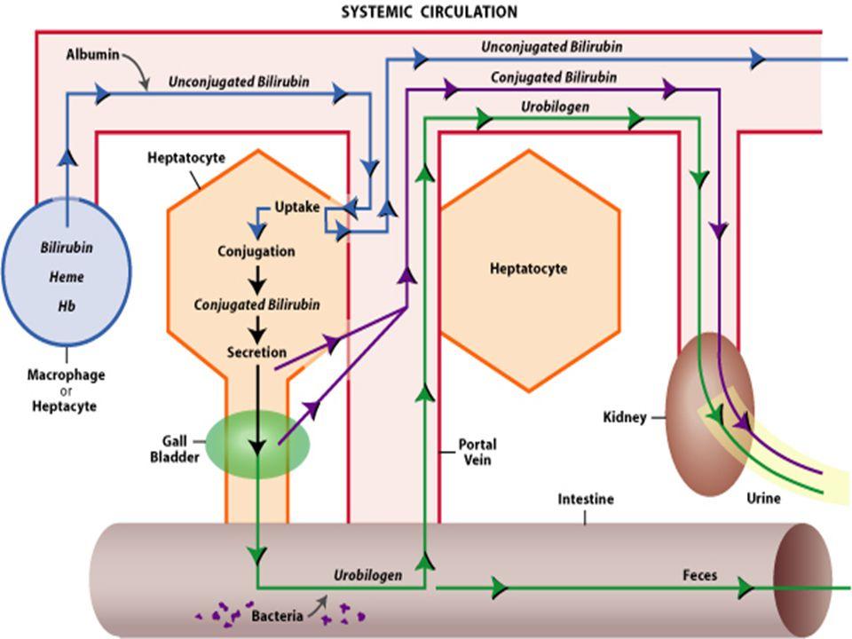 PRE HEPATIK HIPERBILIRUBINEMIA Excessive breakdown RBCs Haematoma Haemolytic anaemia Spherocytosis Sickle cell