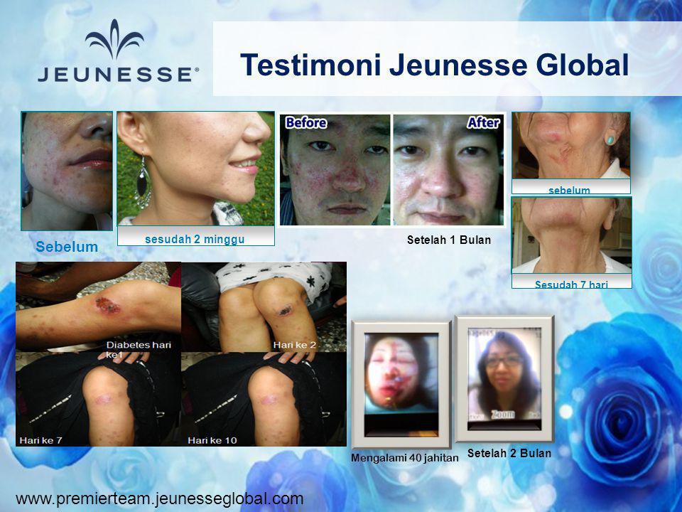 www.premierteam.jeunesseglobal.com Testimoni Jeunesse Global Sebelum sesudah 2 minggu sebelum Sesudah 7 hari Setelah 2 Bulan Mengalami 40 jahitan Sete