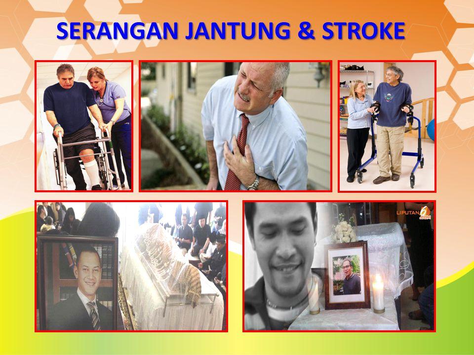 SERANGAN JANTUNG & STROKE