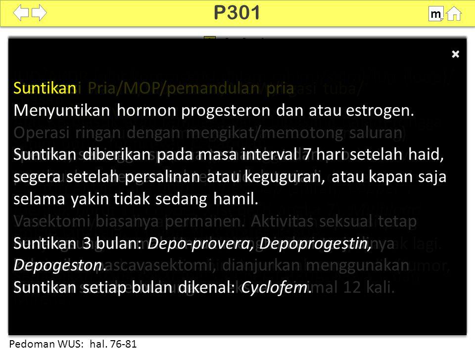 Cara Bertanya P301 Cara Bertanya P301 IUD/AKDR (alat kontrasepsi dalam rahim)/spiral/lup (loop)/ pasang Alat KB plastik atau tembaga yang dipasang dalam rongga rahim untuk mencegah kehamilan.
