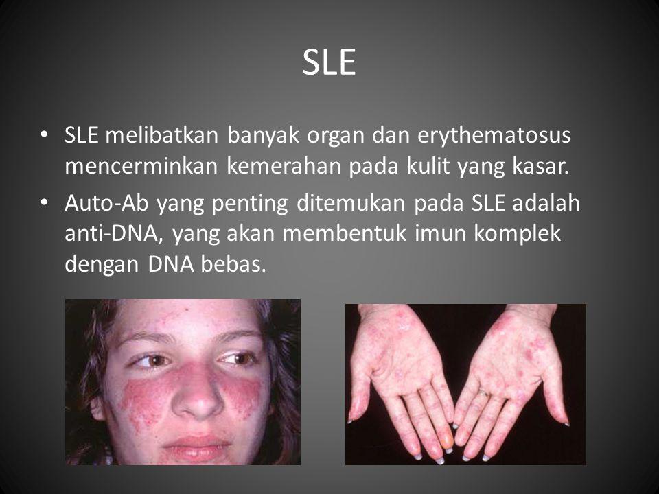 SLE • SLE melibatkan banyak organ dan erythematosus mencerminkan kemerahan pada kulit yang kasar.