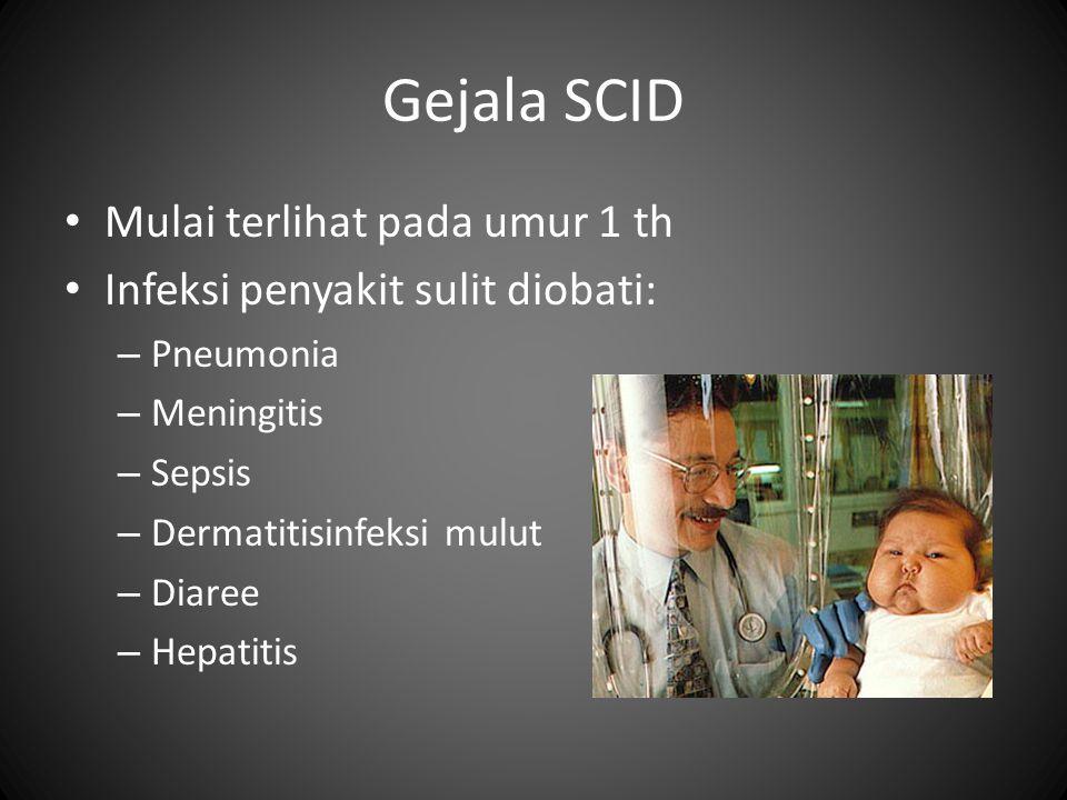 Gejala SCID • Mulai terlihat pada umur 1 th • Infeksi penyakit sulit diobati: – Pneumonia – Meningitis – Sepsis – Dermatitisinfeksi mulut – Diaree – Hepatitis