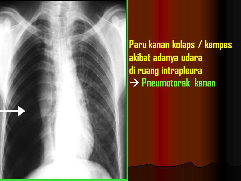 Paru kanan kolaps / kempes akibat adanya udara di ruang intrapleura  Pneumotorak kanan