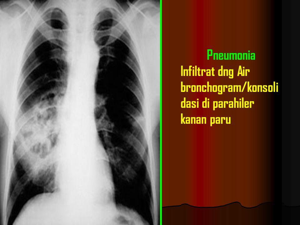 Pneumonia Infiltrat dng Air bronchogram/konsoli dasi di parahiler kanan paru