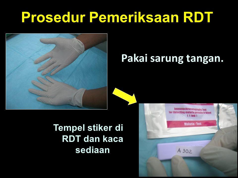 Prosedur Pemeriksaan RDT Pakai sarung tangan. Tempel stiker di RDT dan kaca sediaan