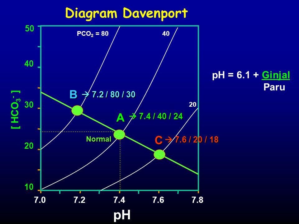 Diagram Davenport [ HCO 3 - ] PCO 2 = 8040 20 pH 7.07.27.47.67.8 10 20 30 40 50 pH = 6.1 + Ginjal Paru B A C  7.4 / 40 / 24  7.2 / 80 / 30  7.2 / 8