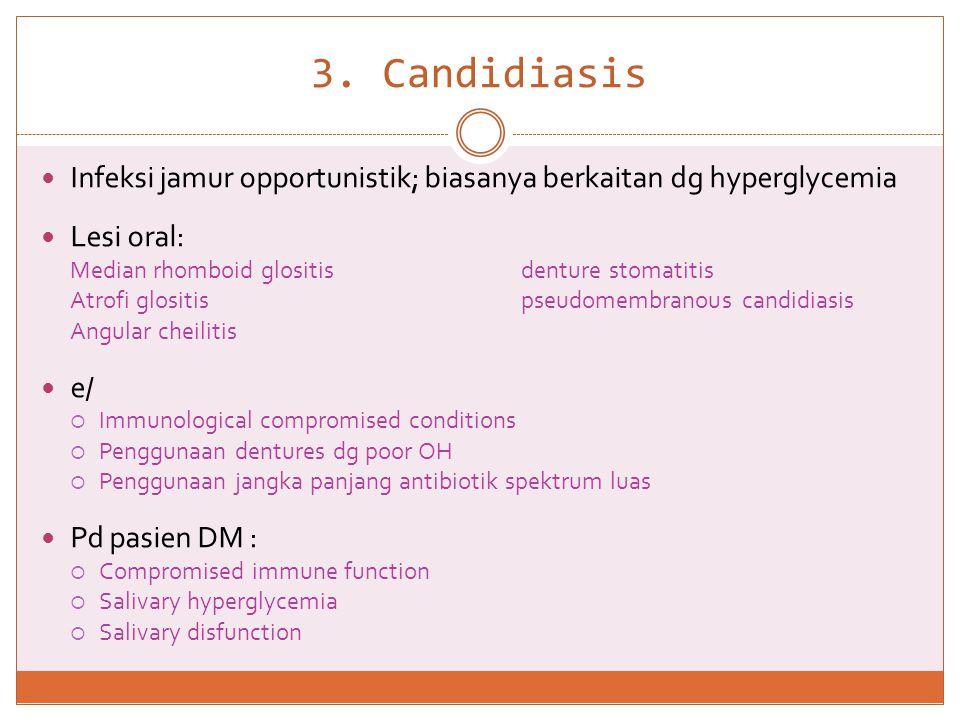3. Candidiasis  Infeksi jamur opportunistik; biasanya berkaitan dg hyperglycemia  Lesi oral: Median rhomboid glositisdenture stomatitis Atrofi glosi