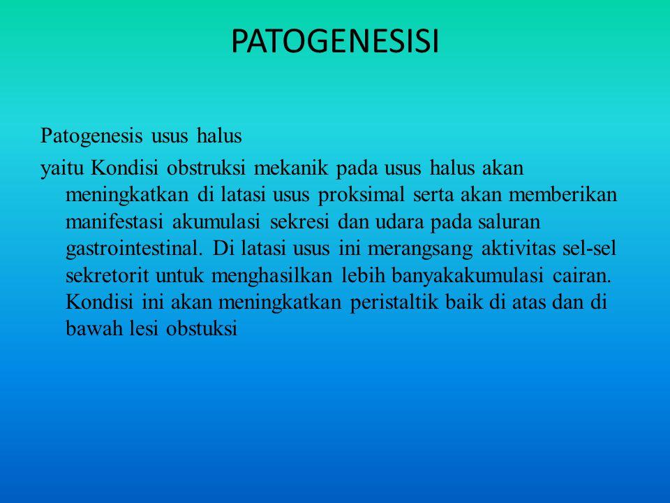 PATOGENESISI Patogenesis usus halus yaitu Kondisi obstruksi mekanik pada usus halus akan meningkatkan di latasi usus proksimal serta akan memberikan manifestasi akumulasi sekresi dan udara pada saluran gastrointestinal.