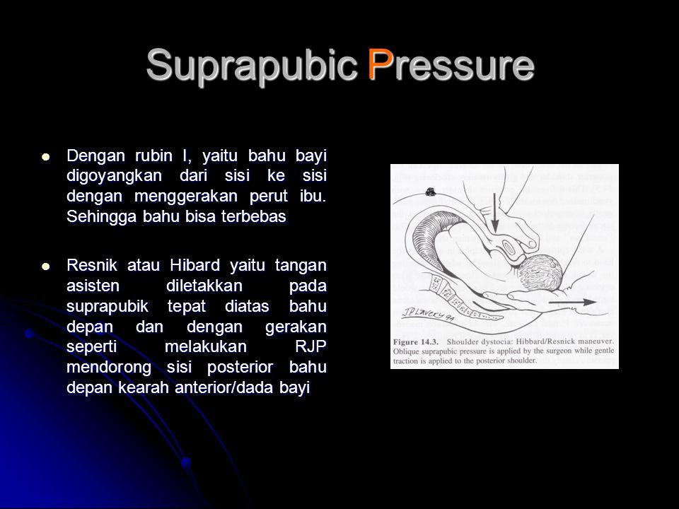 Suprapubic Pressure  Dengan rubin I, yaitu bahu bayi digoyangkan dari sisi ke sisi dengan menggerakan perut ibu. Sehingga bahu bisa terbebas  Resnik