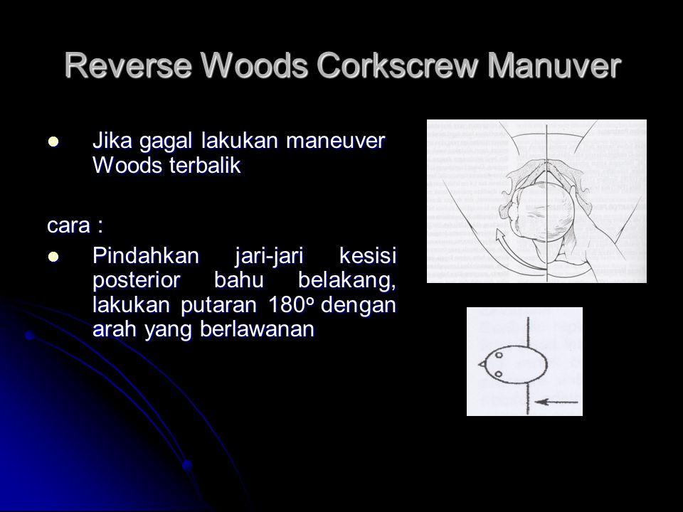 Reverse Woods Corkscrew Manuver  Jika gagal lakukan maneuver Woods terbalik cara :  Pindahkan jari-jari kesisi posterior bahu belakang, lakukan putaran 180 o dengan arah yang berlawanan