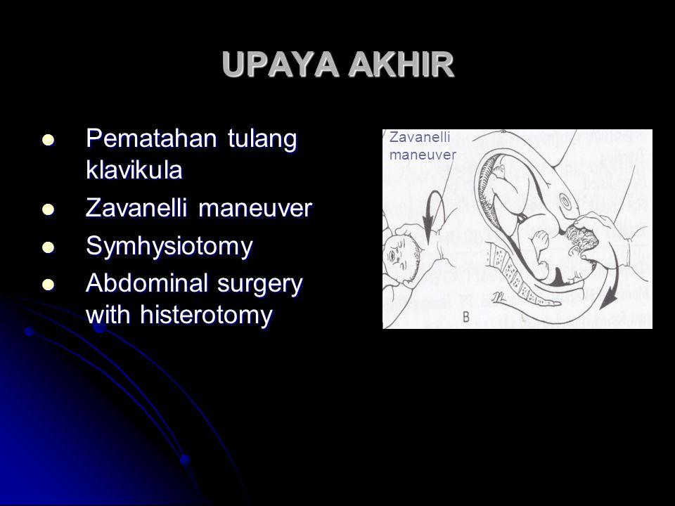 UPAYA AKHIR  Pematahan tulang klavikula  Zavanelli maneuver  Symhysiotomy  Abdominal surgery with histerotomy Zavanelli maneuver