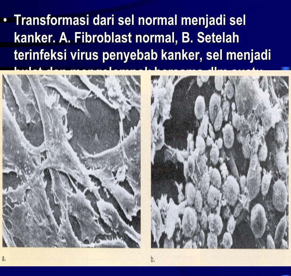 • Transformasi dari sel normal menjadi sel kanker. A. Fibroblast normal, B. Setelah terinfeksi virus penyebab kanker, sel menjadi bulat dan mengelompo