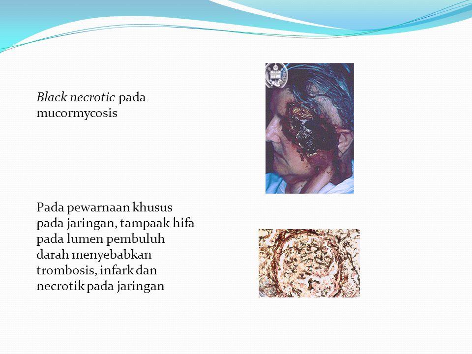 Black necrotic pada mucormycosis Pada pewarnaan khusus pada jaringan, tampaak hifa pada lumen pembuluh darah menyebabkan trombosis, infark dan necroti