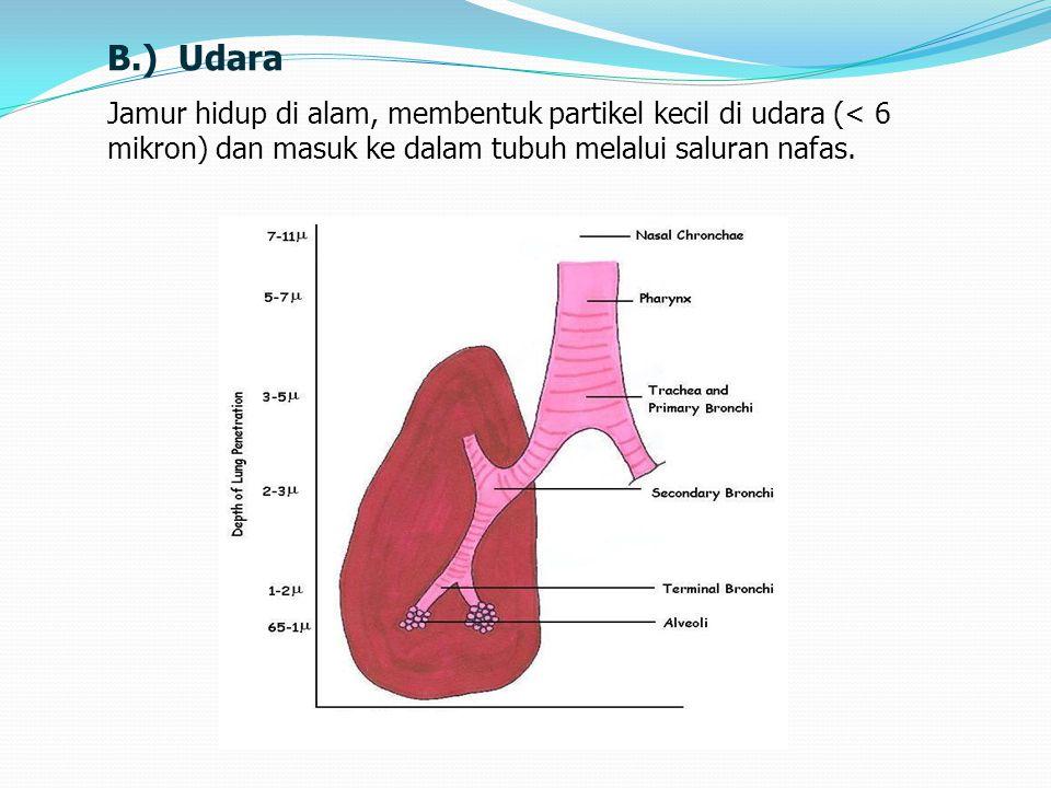 B.) Udara Jamur hidup di alam, membentuk partikel kecil di udara (< 6 mikron) dan masuk ke dalam tubuh melalui saluran nafas.