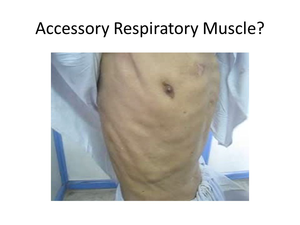 Accessory Respiratory Muscle?