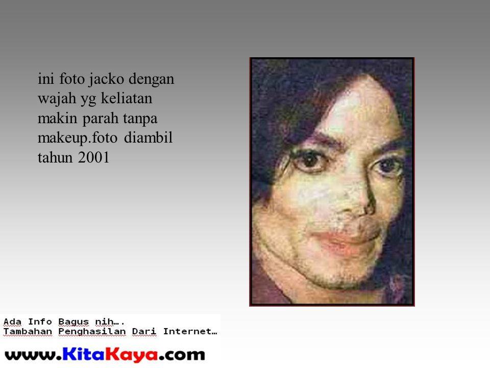 ini foto jacko dengan wajah yg keliatan makin parah tanpa makeup.foto diambil tahun 2001