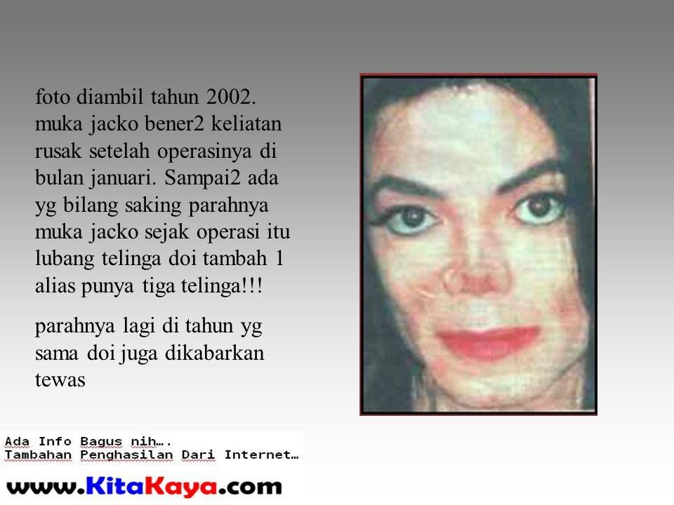 foto diambil tahun 2002. muka jacko bener2 keliatan rusak setelah operasinya di bulan januari.