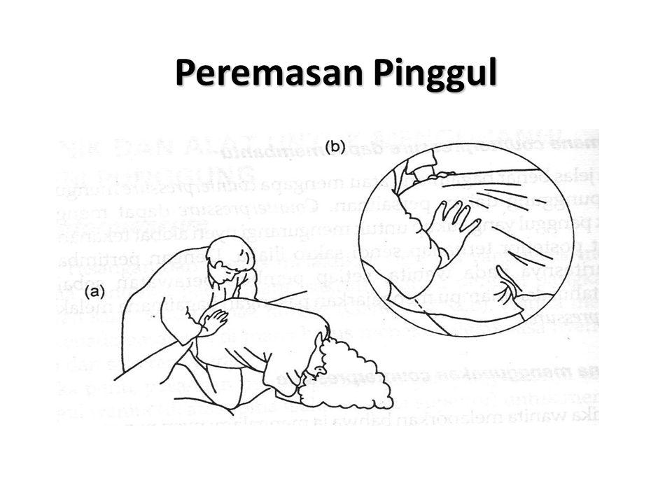 Peremasan Pinggul