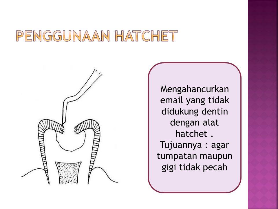 Mengahancurkan email yang tidak didukung dentin dengan alat hatchet. Tujuannya : agar tumpatan maupun gigi tidak pecah
