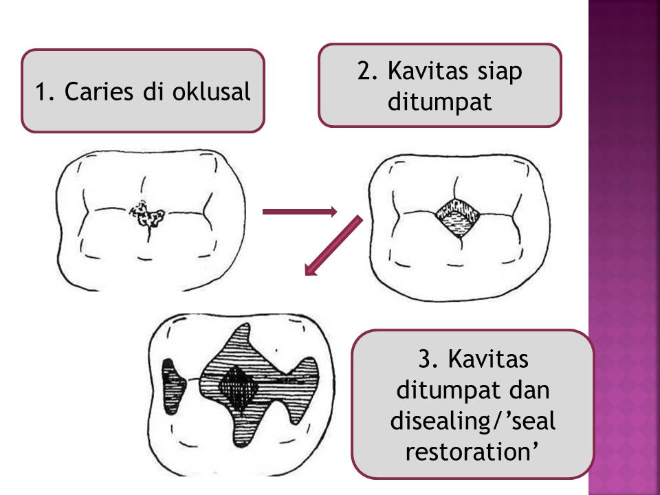 1. Caries di oklusal 3. Kavitas ditumpat dan disealing/'seal restoration' 2. Kavitas siap ditumpat