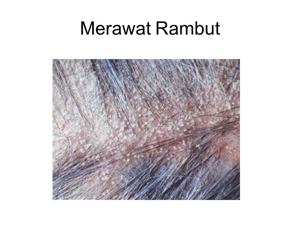Merawat Rambut