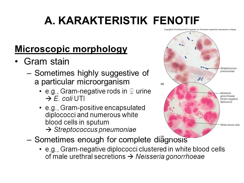 A. KARAKTERISTIK FENOTIF Microscopic morphology •Gram stain –Sometimes highly suggestive of a particular microorganism •e.g., Gram-negative rods in ♀