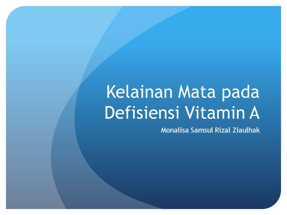 Kelainan Mata pada Defisiensi Vitamin A Monalisa Samsul Rizal Ziaulhak