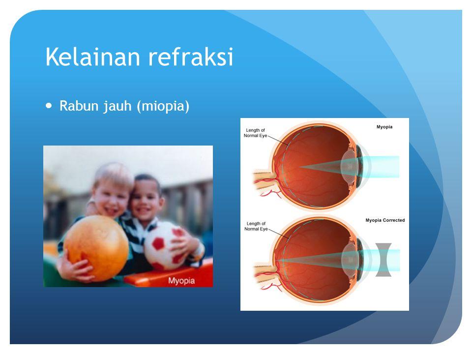 Kelainan refraksi Rabun jauh (miopia)