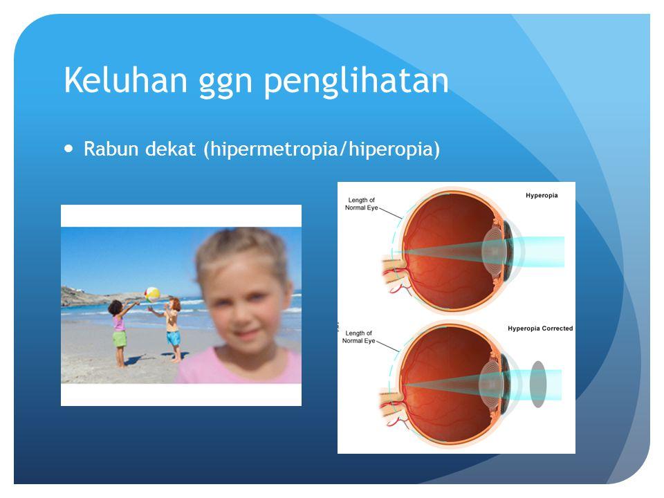 Keluhan ggn penglihatan Rabun dekat (hipermetropia/hiperopia)